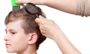 head-lice-symptoms