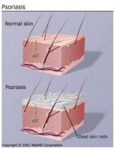 understanding_psoriasis_basics